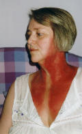 Picture of radiotherapy neck burns - 3 days after finishing radiation treatment.