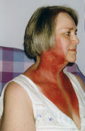 Photo  of neck burns  post radiotherapy 3 days after treatment finished.