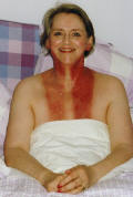 Photograph  of neck burn  9 days after radiation treatment finished.