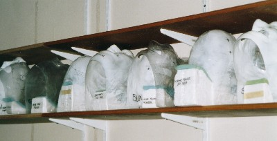 Radiotherapy Masks on Display in the Linear Accelerator Room